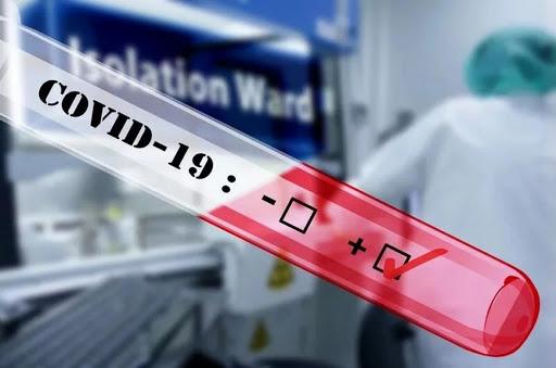 По состоянию на 14 апреля в Беларуси проведено почти 72 тыс. тестов на COVID-19.